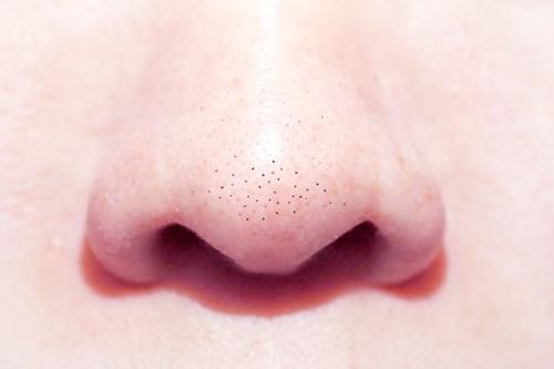 鼻 毛穴 黒ずみ 対策