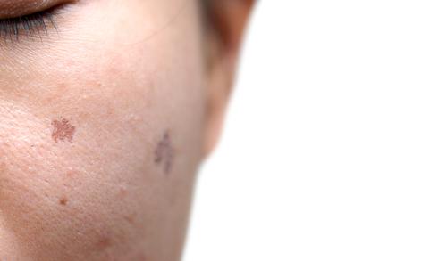 妊娠 シミ 肝斑