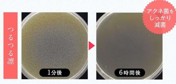 つるつる凛の効果 アクネ菌